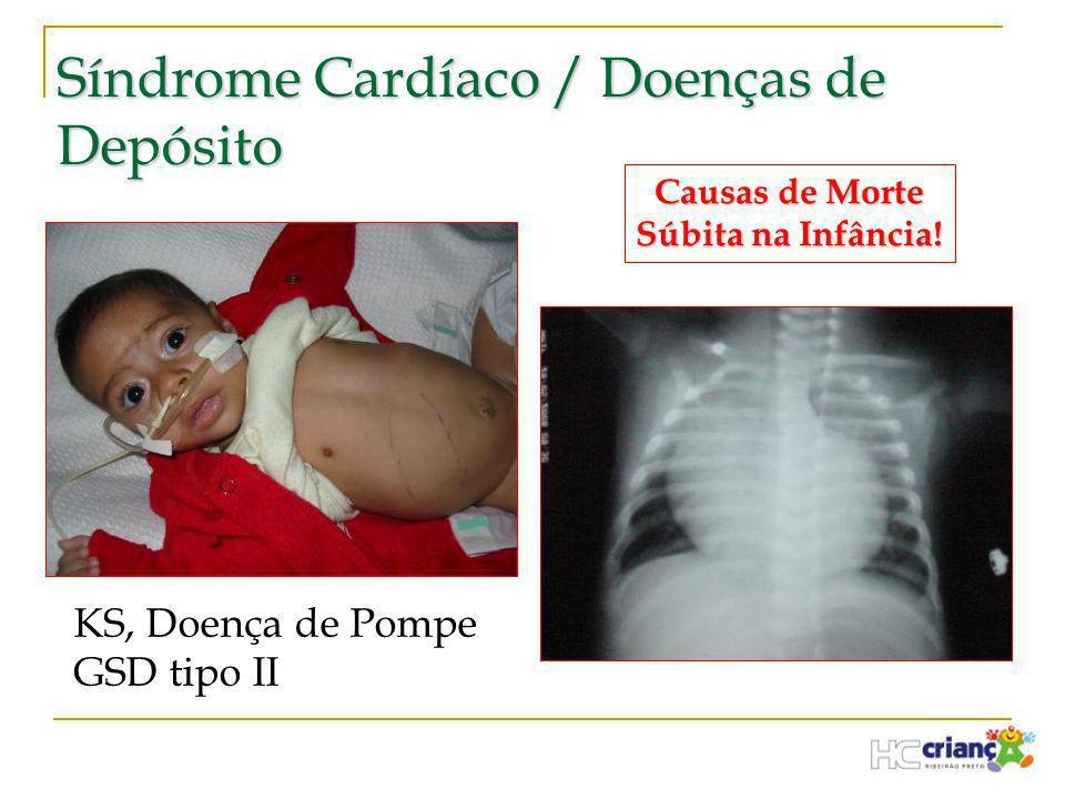 Síndrome Cardíaco / Doenças de Depósito KS, Doença de Pompe GSD tipo II Causas de Morte Súbita na Infância!