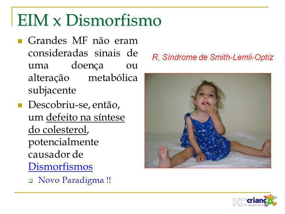 EIM x Dismorfismo  Grandes MF não eram consideradas sinais de uma doença ou alteração metabólica subjacente  Descobriu-se, então, um defeito na sínt