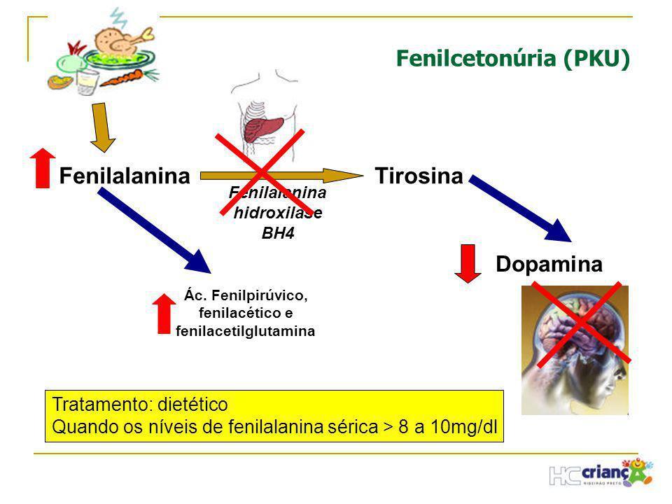 FenilalaninaTirosina Fenilalanina hidroxilase BH4 Dopamina Tratamento: dietético Quando os níveis de fenilalanina sérica > 8 a 10mg/dl Ác. Fenilpirúvi