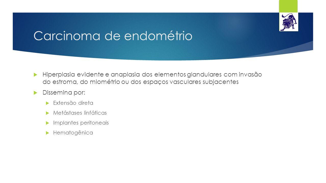 Carcinoma de endométrio  Hiperplasia evidente e anaplasia dos elementos glandulares com invasão do estroma, do miométrio ou dos espaços vasculares su