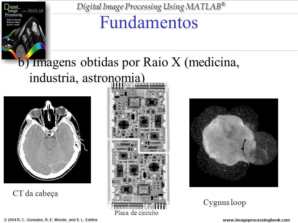 www.imageprocessingbook.com © 2004 R. C. Gonzalez, R. E. Woods, and S. L. Eddins Digital Image Processing Using MATLAB ® Fundamentos b) Imagens obtida
