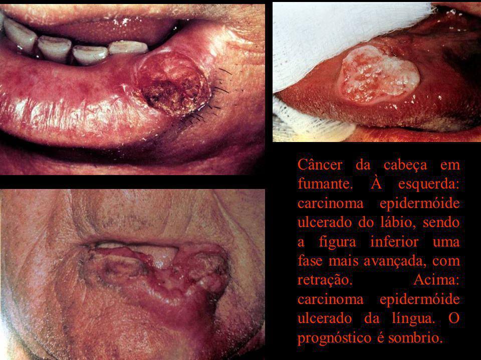 Câncer da cabeça em fumante. À esquerda: carcinoma epidermóide ulcerado do lábio, sendo a figura inferior uma fase mais avançada, com retração. Acima: