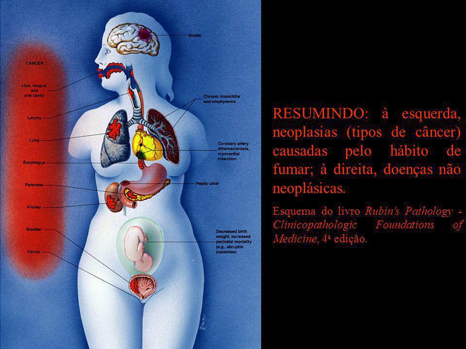 RESUMINDO: à esquerda, neoplasias (tipos de câncer) causadas pelo hábito de fumar; à direita, doenças não neoplásicas. Esquema do livro Rubin's Pathol