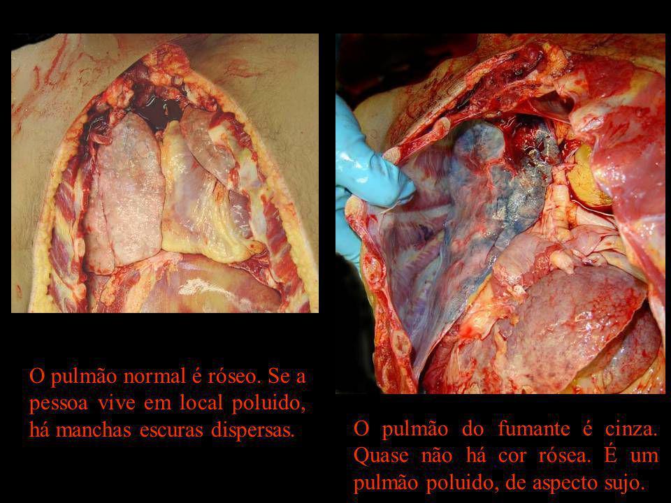 O pulmão normal é róseo. Se a pessoa vive em local poluido, há manchas escuras dispersas. O pulmão do fumante é cinza. Quase não há cor rósea. É um pu