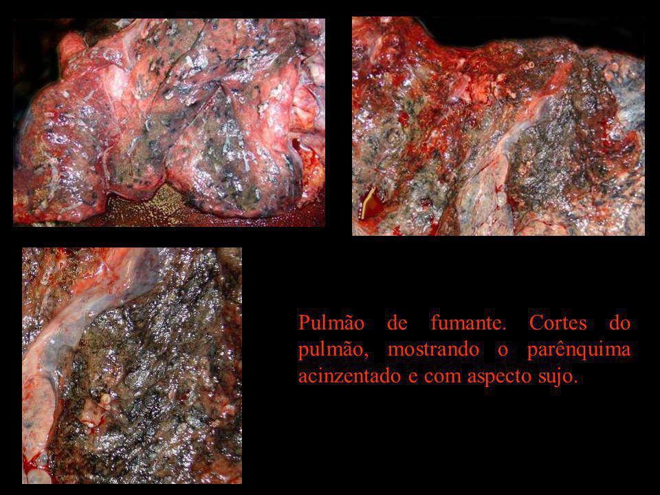 Pulmão de fumante. Cortes do pulmão, mostrando o parênquima acinzentado e com aspecto sujo.