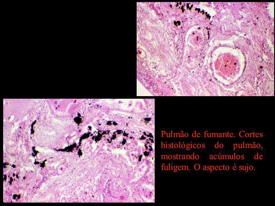 Pulmão de fumante. Cortes histológicos do pulmão, mostrando acúmulos de fuligem. O aspecto é sujo.