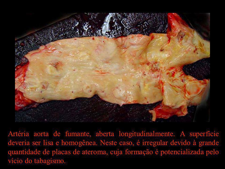 Artéria aorta de fumante, aberta longitudinalmente. A superfície deveria ser lisa e homogênea. Neste caso, é irregular devido à grande quantidade de p