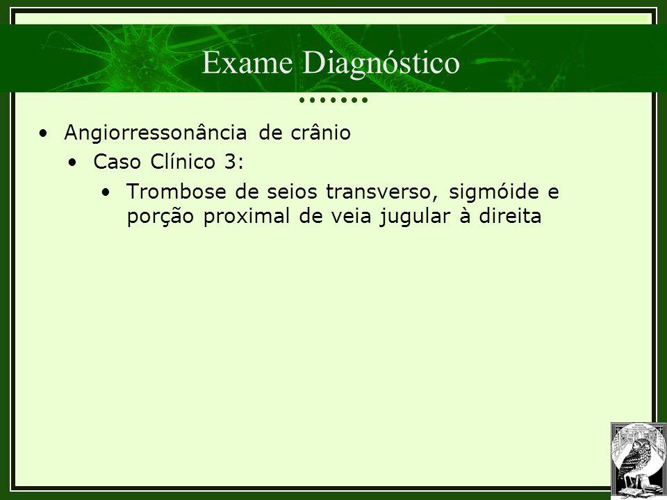 Trombose Venosa Cerebral Exame Diagnóstico •Angiorressonância de crânio •Caso Clínico 3: •Trombose de seios transverso, sigmóide e porção proximal de