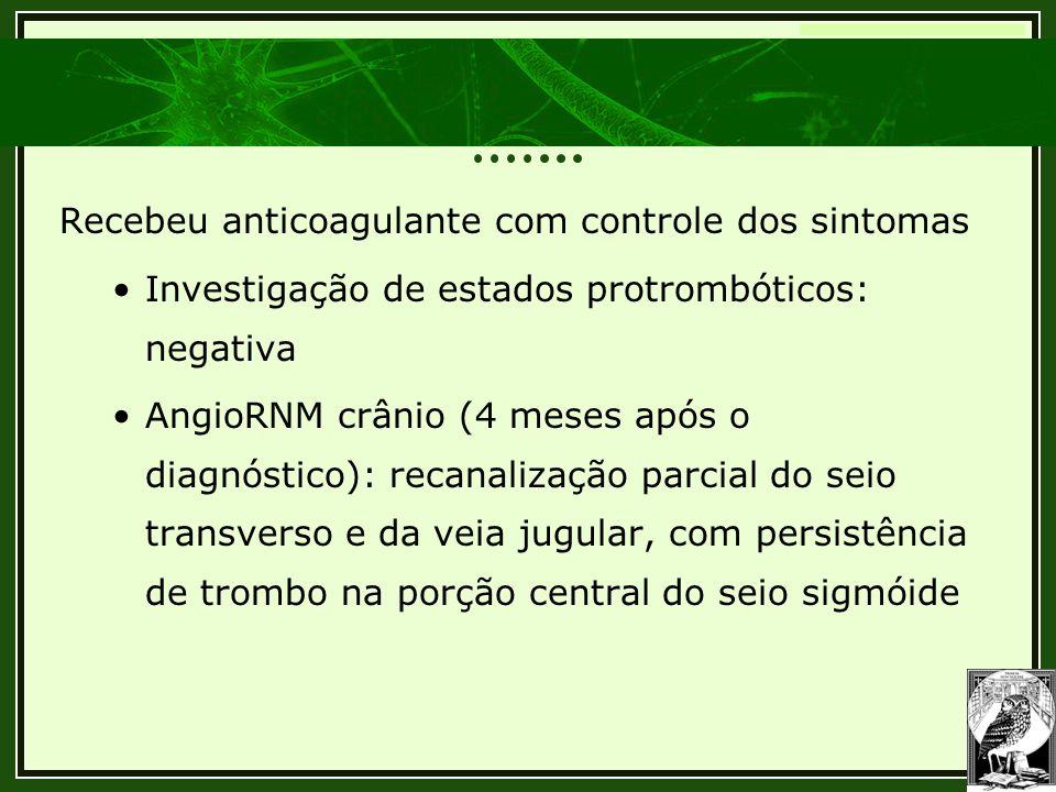 Trombose Venosa Cerebral Recebeu anticoagulante com controle dos sintomas •Investigação de estados protrombóticos: negativa •AngioRNM crânio (4 meses
