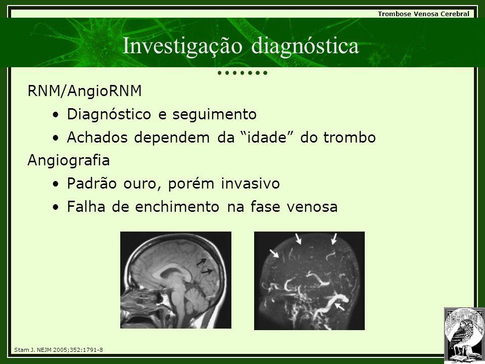 """Trombose Venosa Cerebral Investigação diagnóstica RNM/AngioRNM •Diagnóstico e seguimento •Achados dependem da """"idade"""" do trombo Angiografia •Padrão ou"""