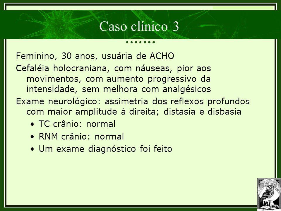 Trombose Venosa Cerebral Caso clínico 3 Feminino, 30 anos, usuária de ACHO Cefaléia holocraniana, com náuseas, pior aos movimentos, com aumento progre