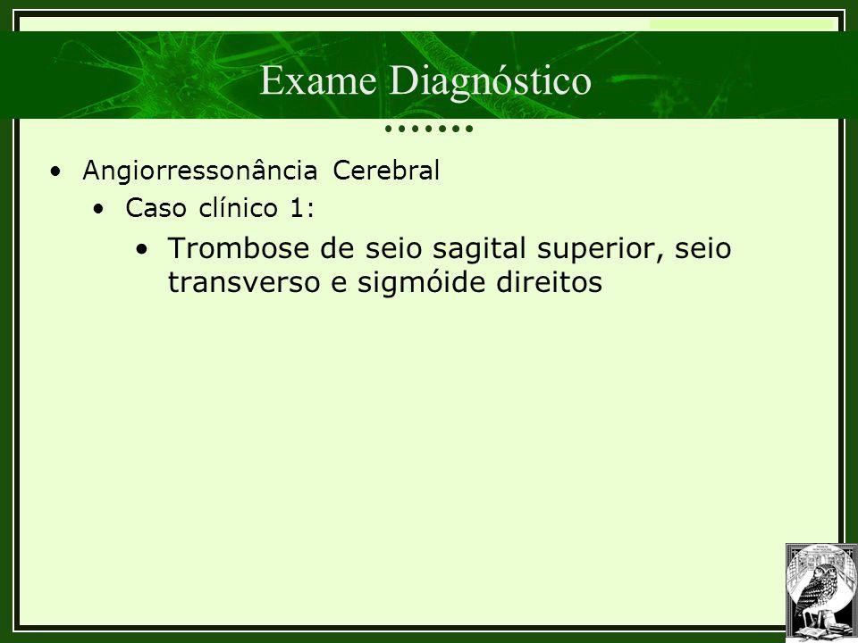 Trombose Venosa Cerebral Exame Diagnóstico •Angiorressonância Cerebral •Caso clínico 1: •Trombose de seio sagital superior, seio transverso e sigmóide