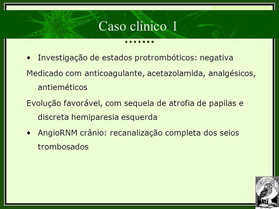 Trombose Venosa Cerebral Caso clínico 1 •Investigação de estados protrombóticos: negativa Medicado com anticoagulante, acetazolamida, analgésicos, ant
