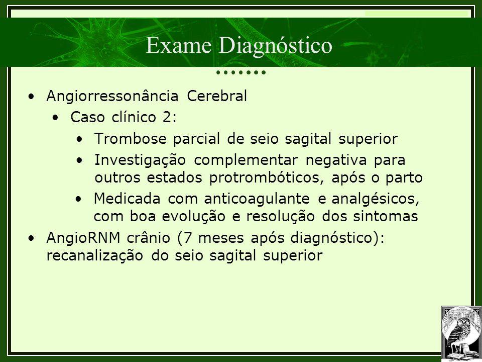 Trombose Venosa Cerebral Exame Diagnóstico •Angiorressonância Cerebral •Caso clínico 2: •Trombose parcial de seio sagital superior •Investigação compl