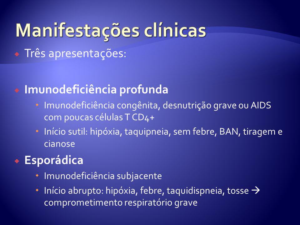  Três apresentações:  Imunodeficiência profunda  Imunodeficiência congênita, desnutrição grave ou AIDS com poucas células T CD4+  Início sutil: hipóxia, taquipneia, sem febre, BAN, tiragem e cianose  Esporádica  Imunodeficiência subjacente  Início abrupto: hipóxia, febre, taquidispneia, tosse  comprometimento respiratório grave