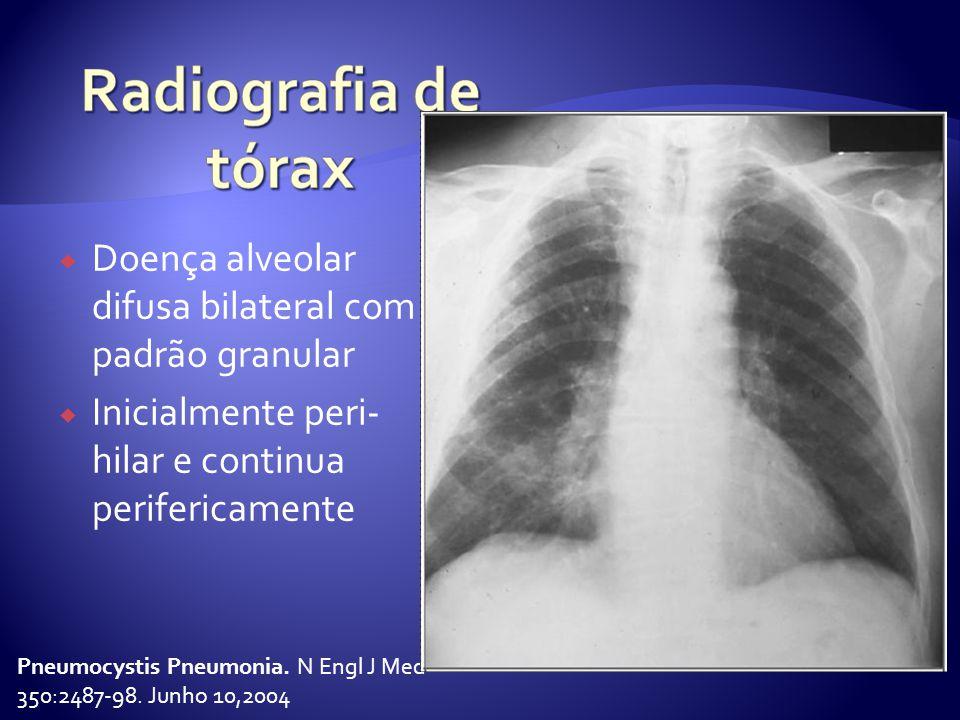  Doença alveolar difusa bilateral com padrão granular  Inicialmente peri- hilar e continua perifericamente Pneumocystis Pneumonia.