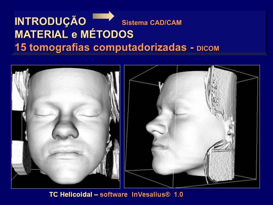 TC Helicoidal – software InVesalius® 1.0