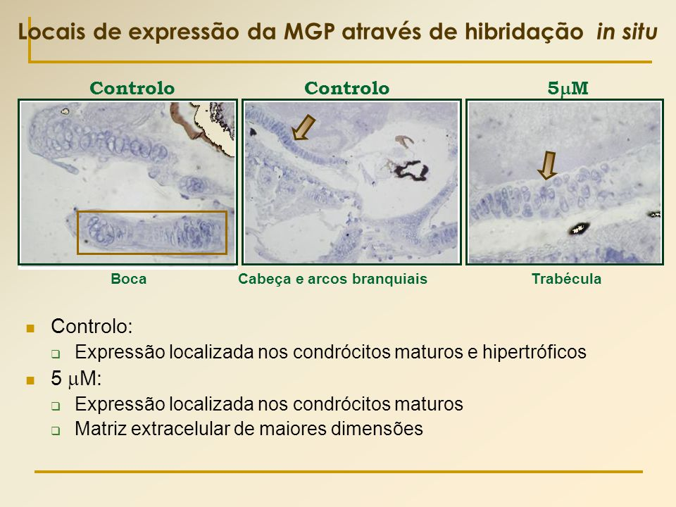 Locais de expressão da MGP através de hibridação in situ  Controlo:  Expressão localizada nos condrócitos maturos e hipertróficos  5  M:  Express