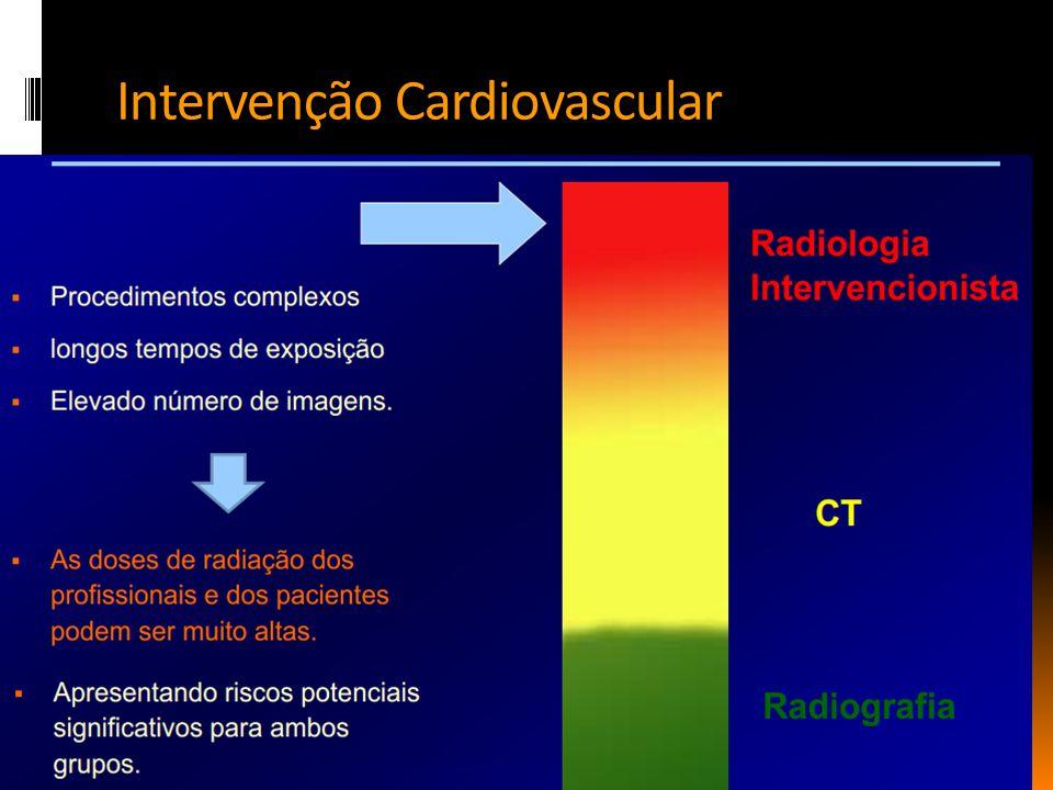 Intervenção Cardiovascular