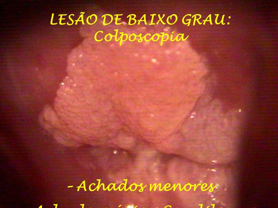 LESÃO DE BAIXO GRAU: Colposcopia – Achados menores - Achados vários: Condilomas