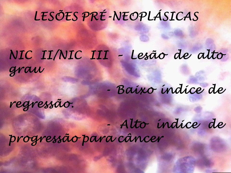 LESÕES PRÉ-NEOPLÁSICAS NIC II/NIC III – Lesão de alto grau - Baixo índice de regressão. - Alto índice de progressão para câncer