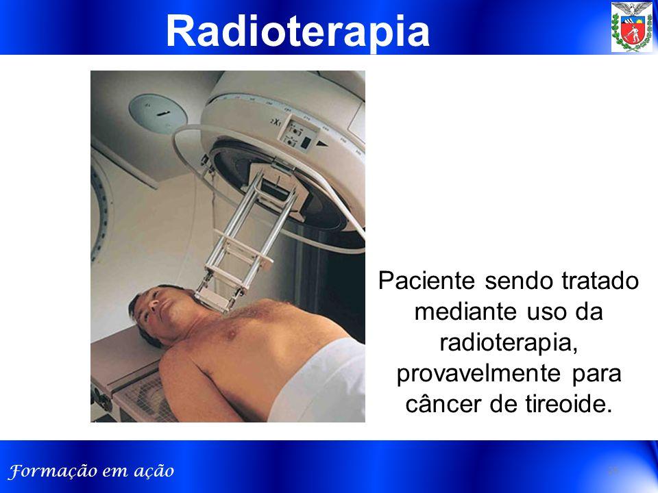 Formação em ação Radioterapia Paciente sendo tratado mediante uso da radioterapia, provavelmente para câncer de tireoide.