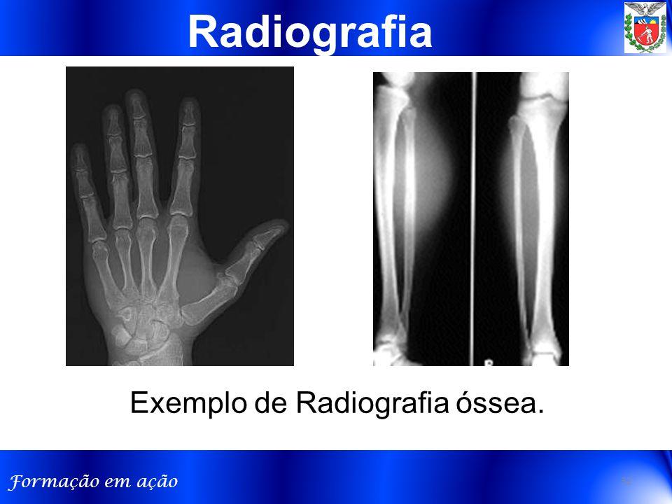 Formação em ação Exemplo de Radiografia óssea. Radiografia 32