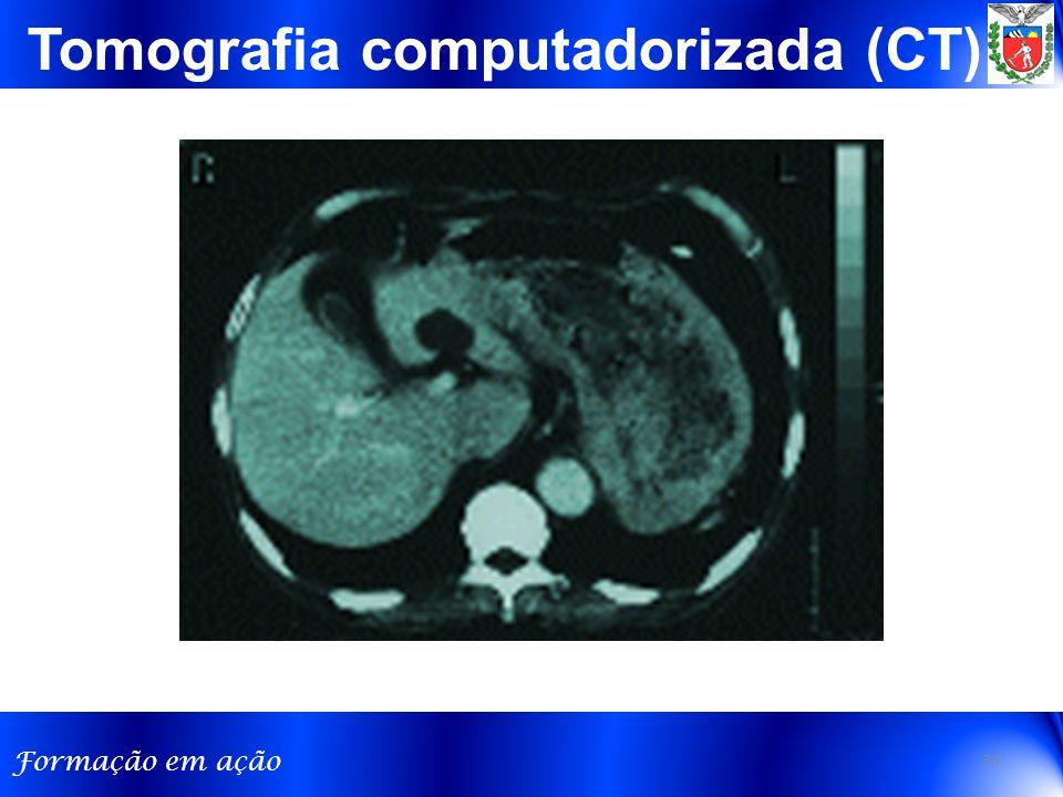 Formação em ação Tomografia computadorizada (CT) 33