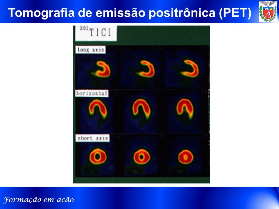 Formação em ação Tomografia de emissão positrônica (PET) 34