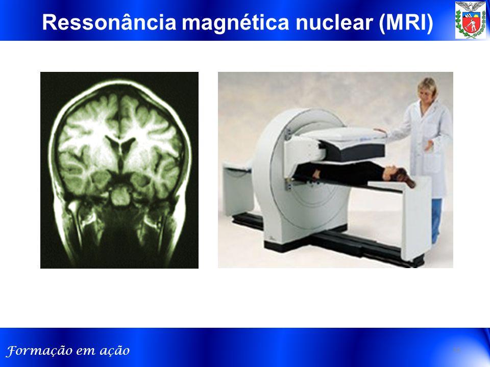Formação em ação Ressonância magnética nuclear (MRI) 35