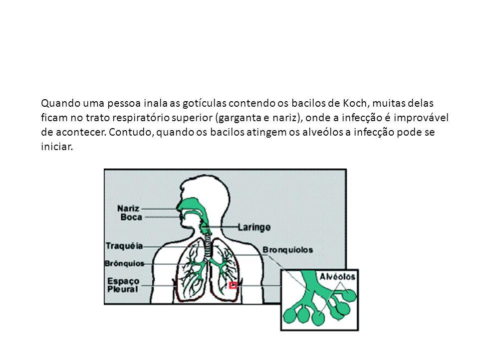 Quando uma pessoa inala as gotículas contendo os bacilos de Koch, muitas delas ficam no trato respiratório superior (garganta e nariz), onde a infecçã