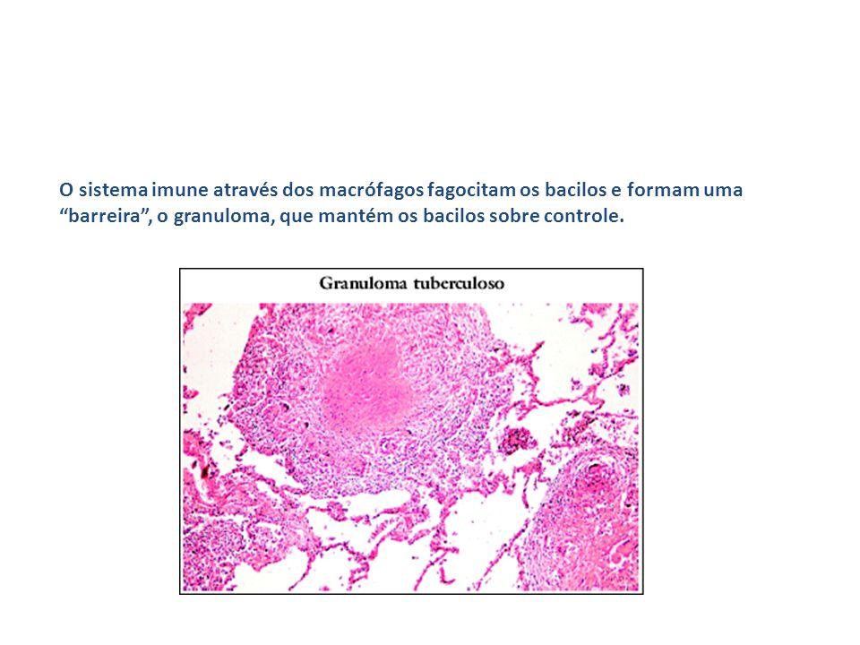 """O sistema imune através dos macrófagos fagocitam os bacilos e formam uma """"barreira"""", o granuloma, que mantém os bacilos sobre controle."""