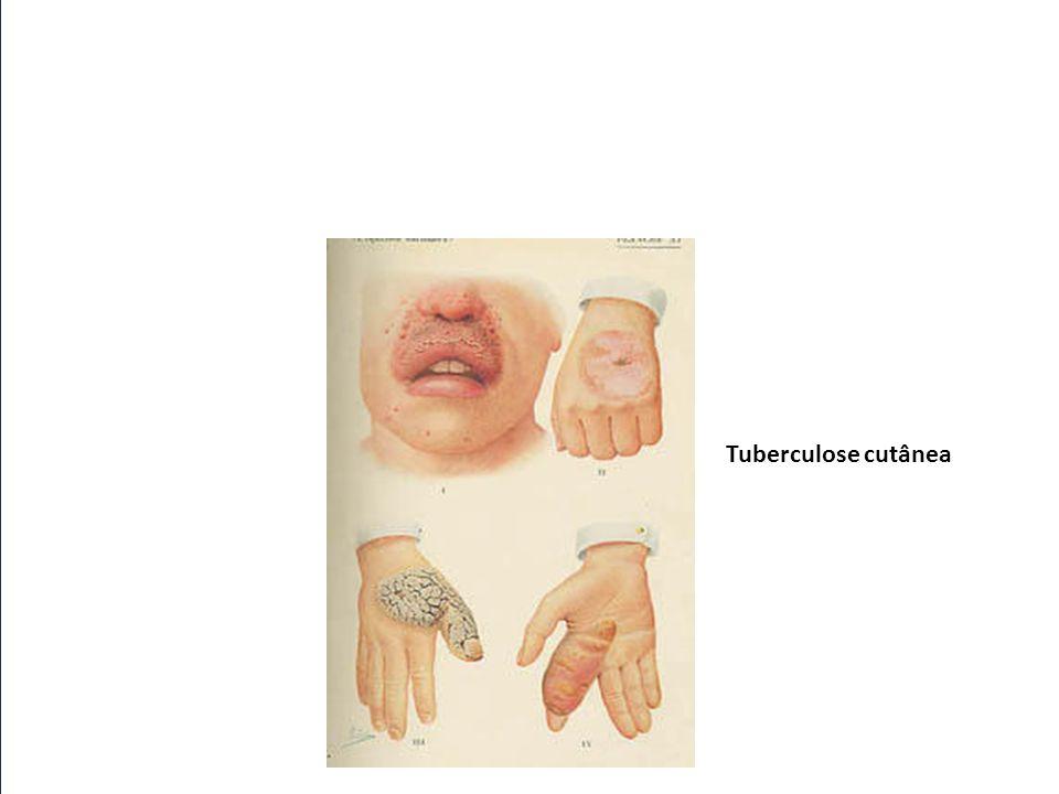 Tuberculose cutânea