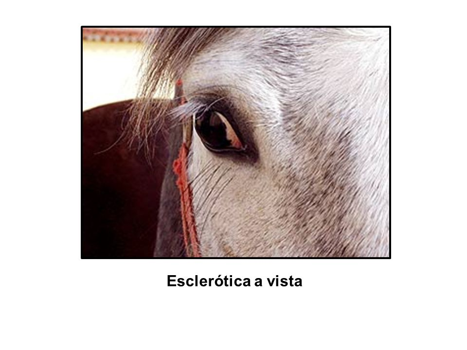 Esclerótica a vista
