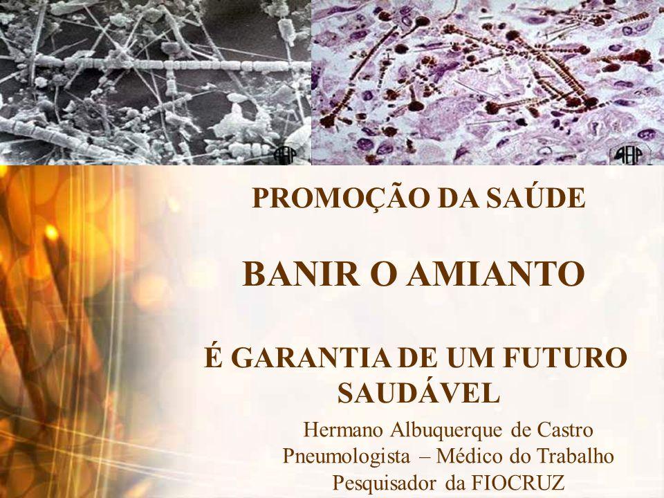 CRISOTILA - CRITÉRIO 203 – OMS - 1999 1 - EXPOSIÇÃO AO ASBESTO CRISOTILA AUMENTA O RISCO DE ASBESTOSE, CÂNCER DE PULMÃO E MESOTELIOMA 2 - NÃO FOI IDENTIFICADO LIMITE DE TOLERÂNCIA PARA O RISCO CARCINOGÊNICO A ação proto-oncogênica do amianto pode levar mais de 30 anos Não há relação dose-resposta para o câncer de pulmão e o mesotelioma •Os efeitos crônicos por exposição ao amianto crisotila são independentes da dose de exposição, sendo portanto impossível estabelecer níveis de exposição seguros.