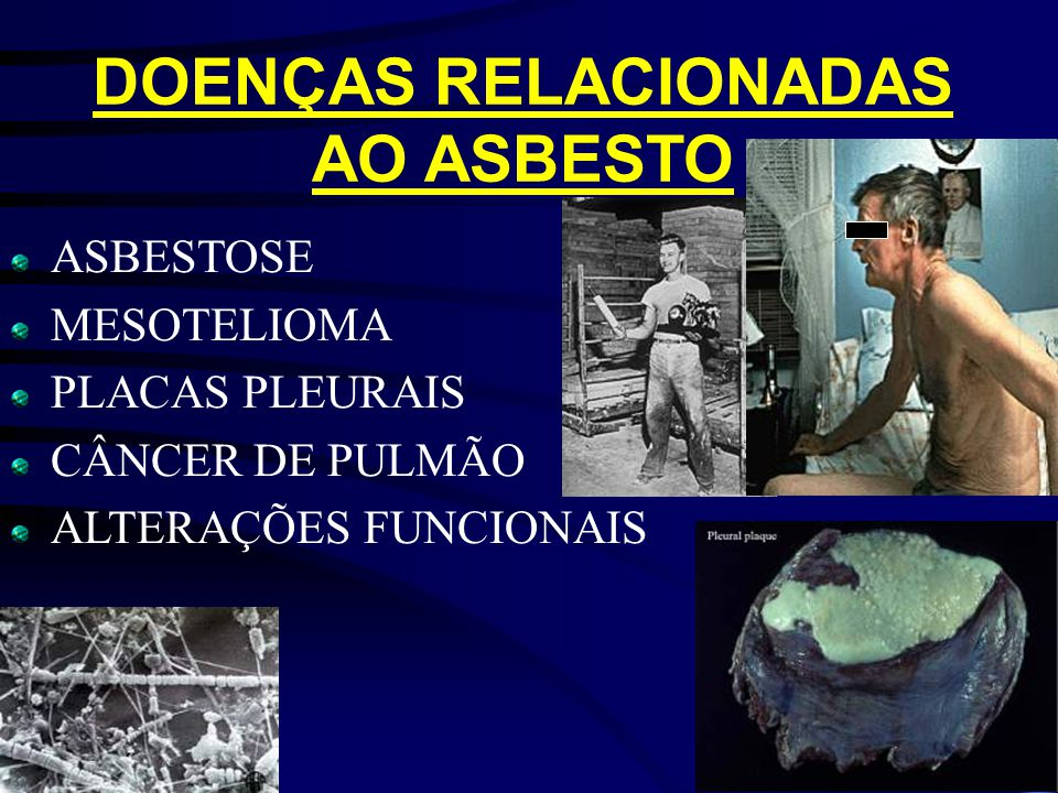 DOENÇAS RELACIONADAS AO ASBESTO ASBESTOSE MESOTELIOMA PLACAS PLEURAIS CÂNCER DE PULMÃO ALTERAÇÕES FUNCIONAIS