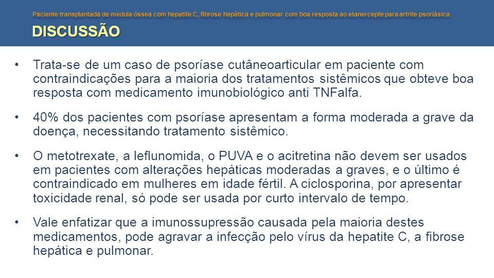Paciente transplantada de medula óssea com hepatite C, fibrose hepática e pulmonar com boa resposta ao etanercepte para artrite psoriásica DISCUSSÃO •