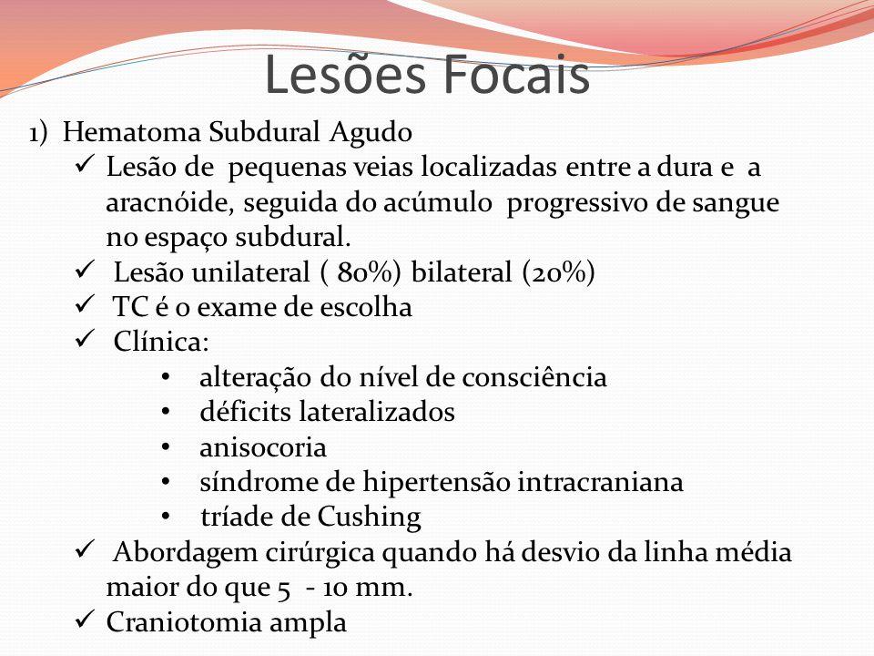 Lesões Focais 1)Hematoma Subdural Agudo  Lesão de pequenas veias localizadas entre a dura e a aracnóide, seguida do acúmulo progressivo de sangue no