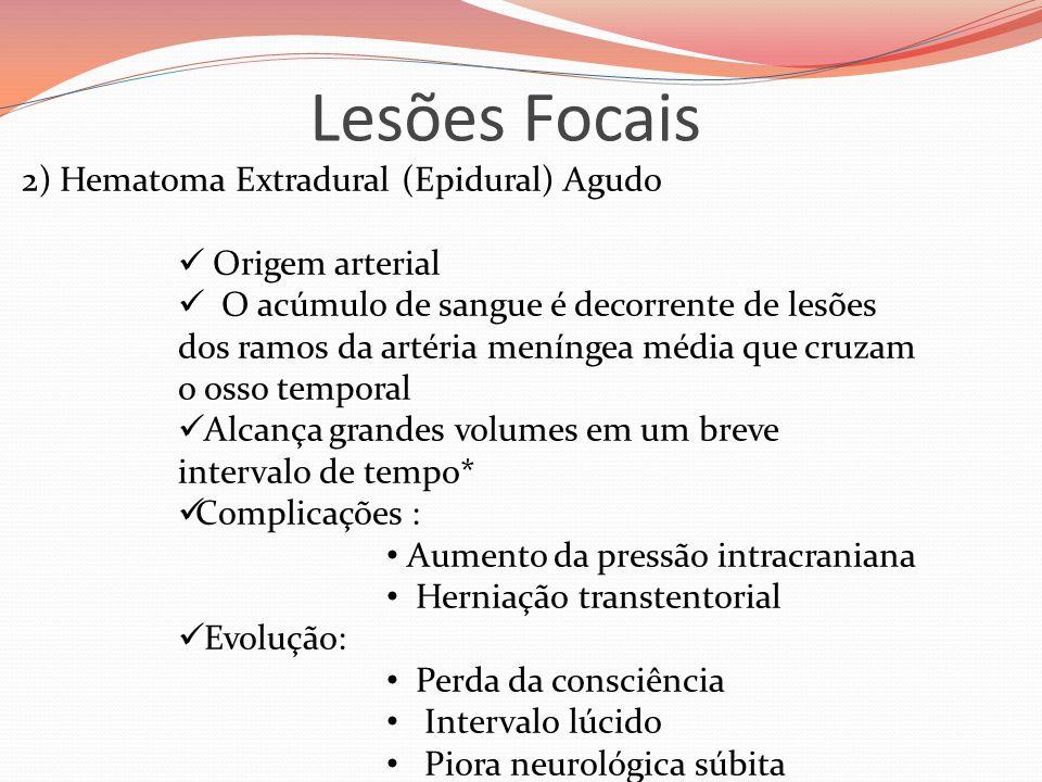 Lesões Focais 2) Hematoma Extradural (Epidural) Agudo  Origem arterial  O acúmulo de sangue é decorrente de lesões dos ramos da artéria meníngea méd