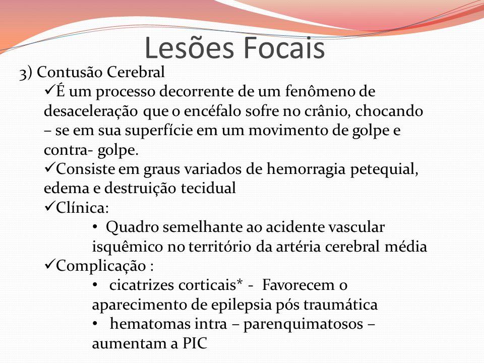 Lesões Focais 3) Contusão Cerebral  É um processo decorrente de um fenômeno de desaceleração que o encéfalo sofre no crânio, chocando – se em sua superfície em um movimento de golpe e contra- golpe.