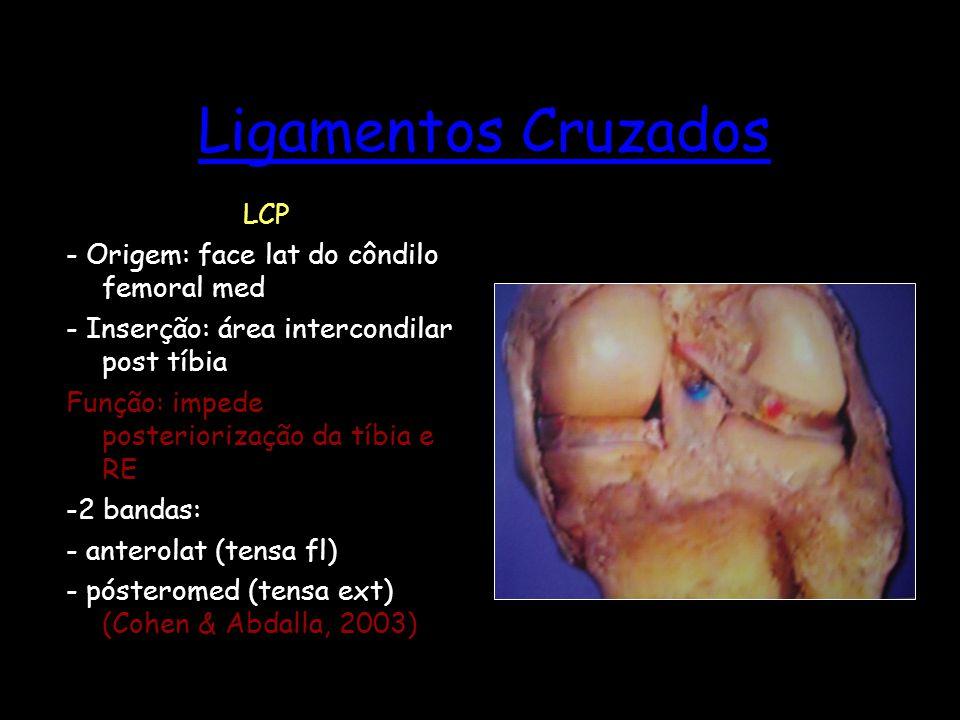 Ligamentos Cruzados LCP - Origem: face lat do côndilo femoral med - Inserção: área intercondilar post tíbia Função: impede posteriorização da tíbia e