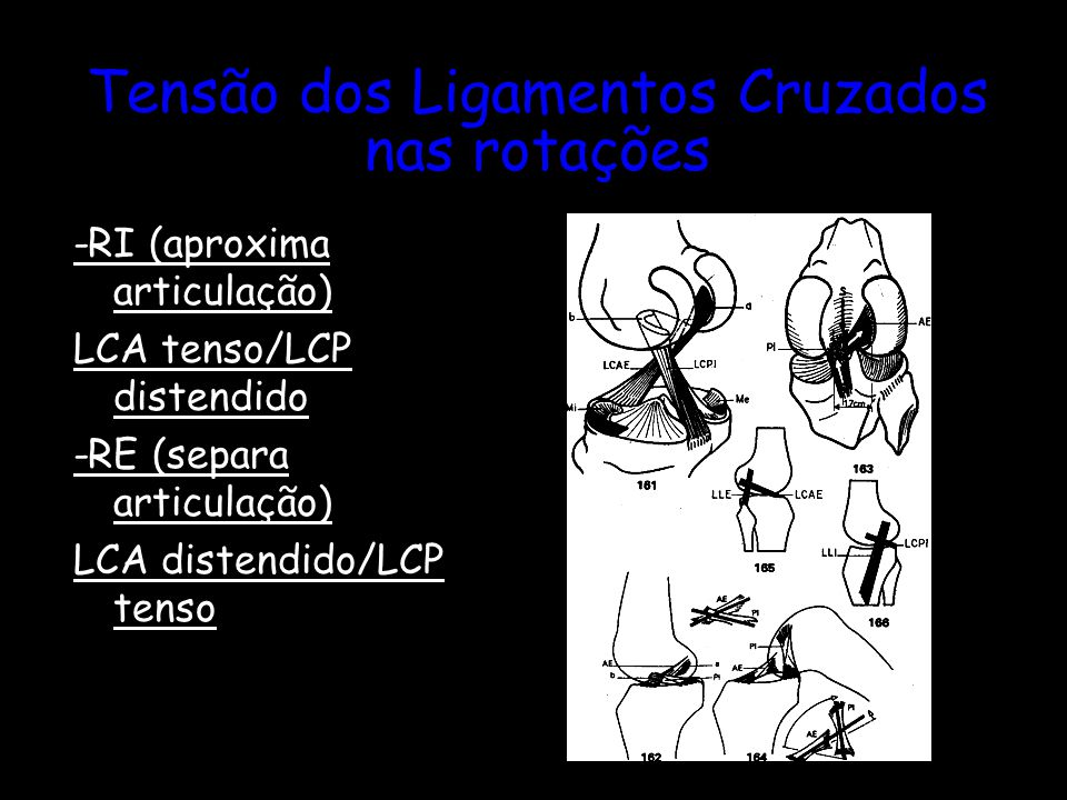 Tensão dos Ligamentos Cruzados nas rotações -RI (aproxima articulação) LCA tenso/LCP distendido -RE (separa articulação) LCA distendido/LCP tenso