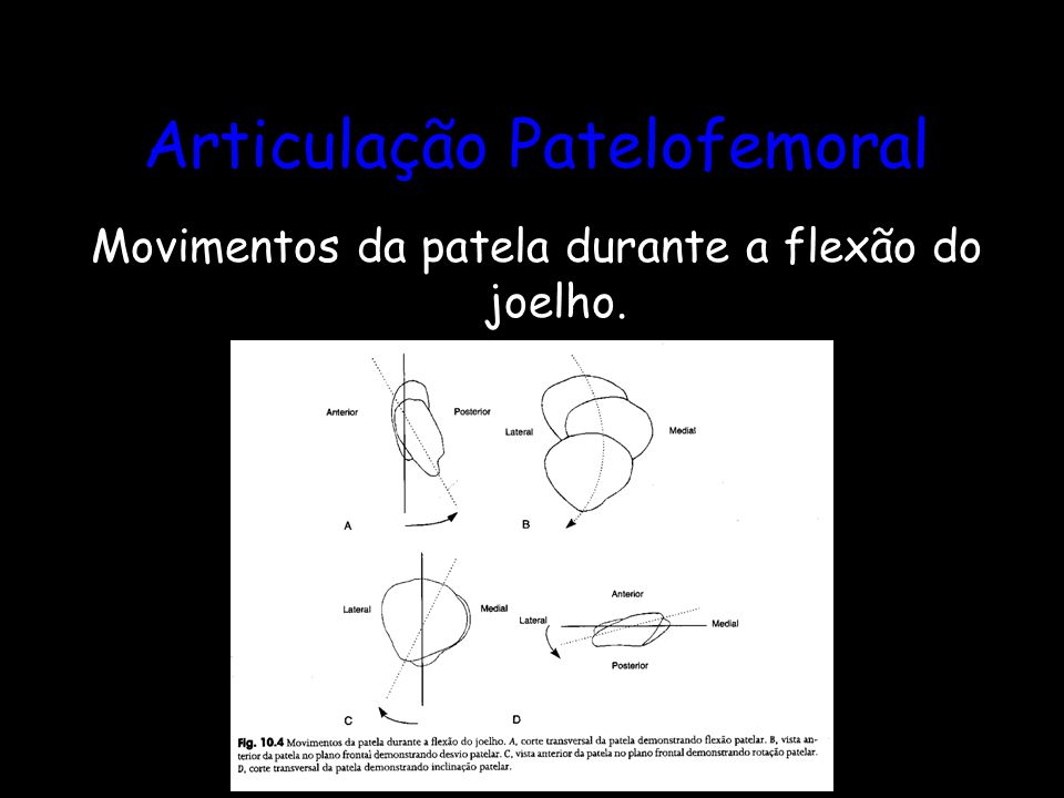 Articulação Patelofemoral Movimentos da patela durante a flexão do joelho.