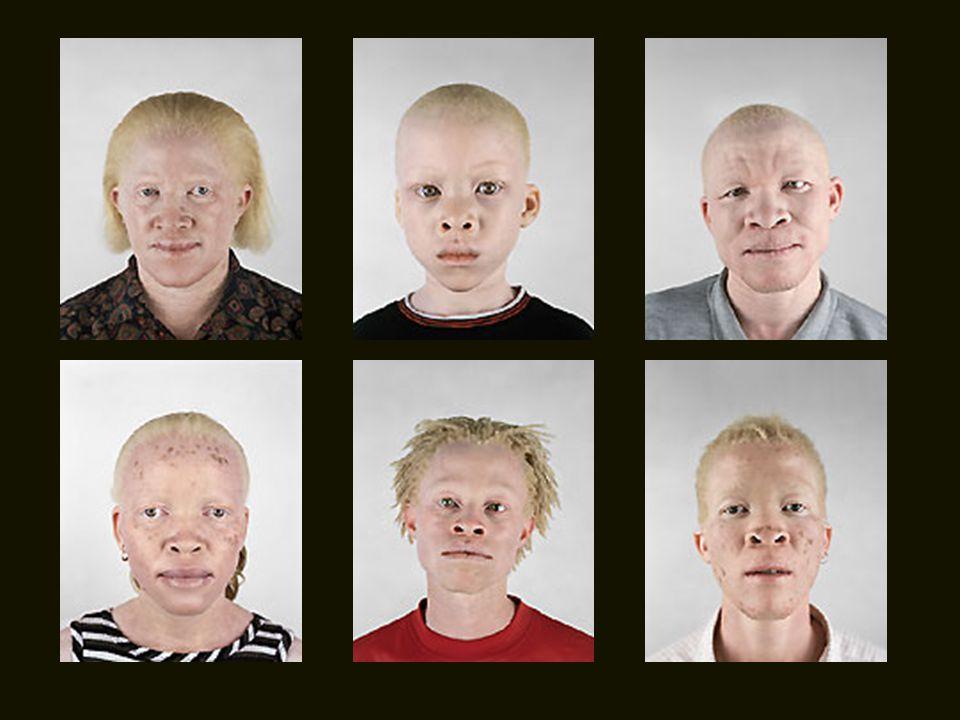 Existem mais albinos na África do que em qualquer outro lugar do mundo. Na verdade, os primeiros colonos portugueses os classificaram como uma raça à