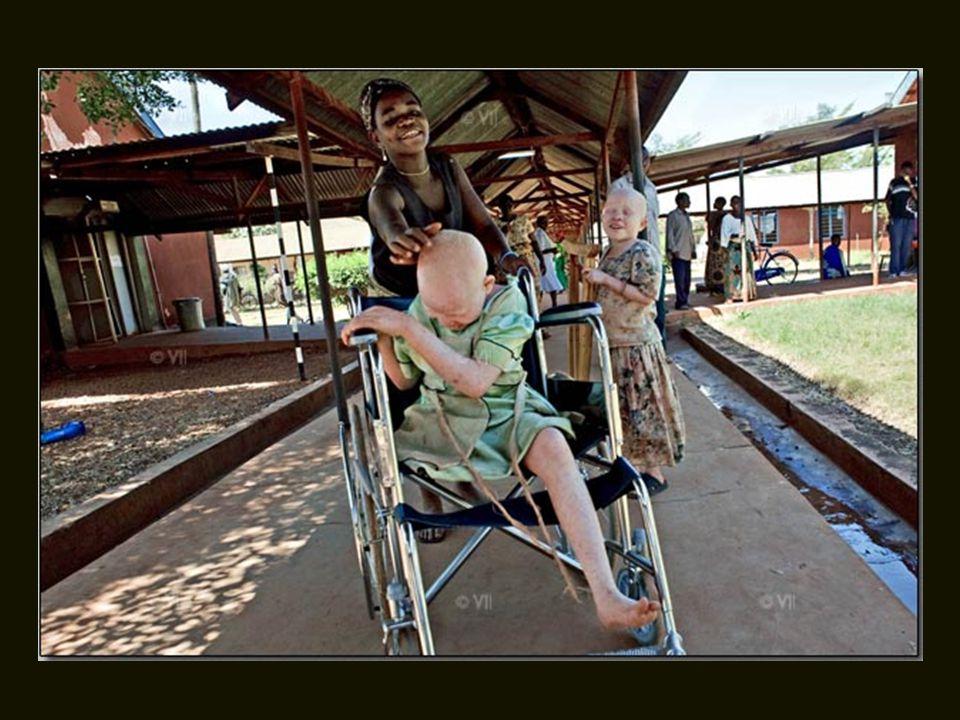 Bibiana foi amputada à noite por pessoas que acreditam que partes do seu corpo albino, usado em conjunto com outros medicamentos tradicionais, podem a