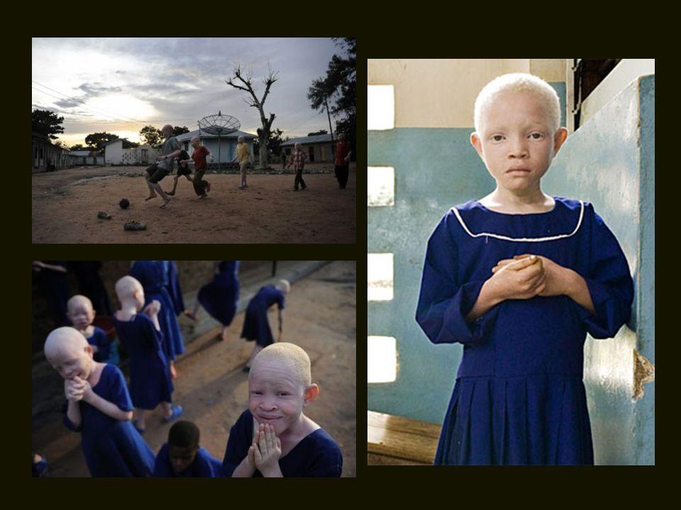 É por isso que organizações internacionais abriram acampamentos especiais, onde os negros albinos podem viver com maior segurança