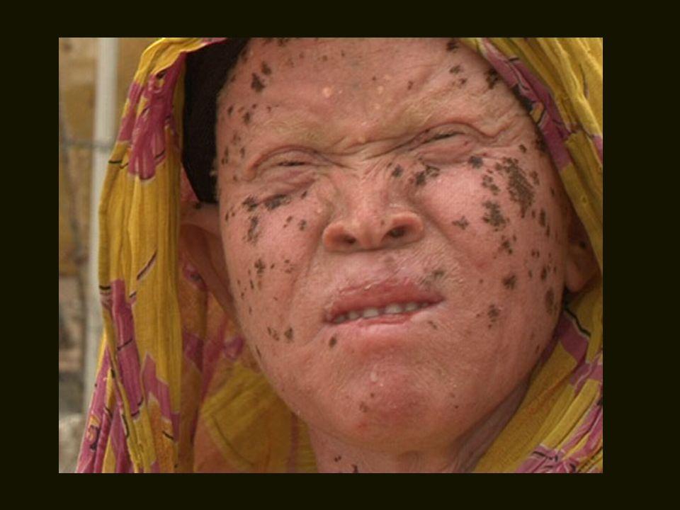 Aqueles que conseguem sobreviver neste ambiente tão hostil, são forçados a trabalhar sob o escaldante sol africano, ficando irremediavelmente doente de câncer de pele.