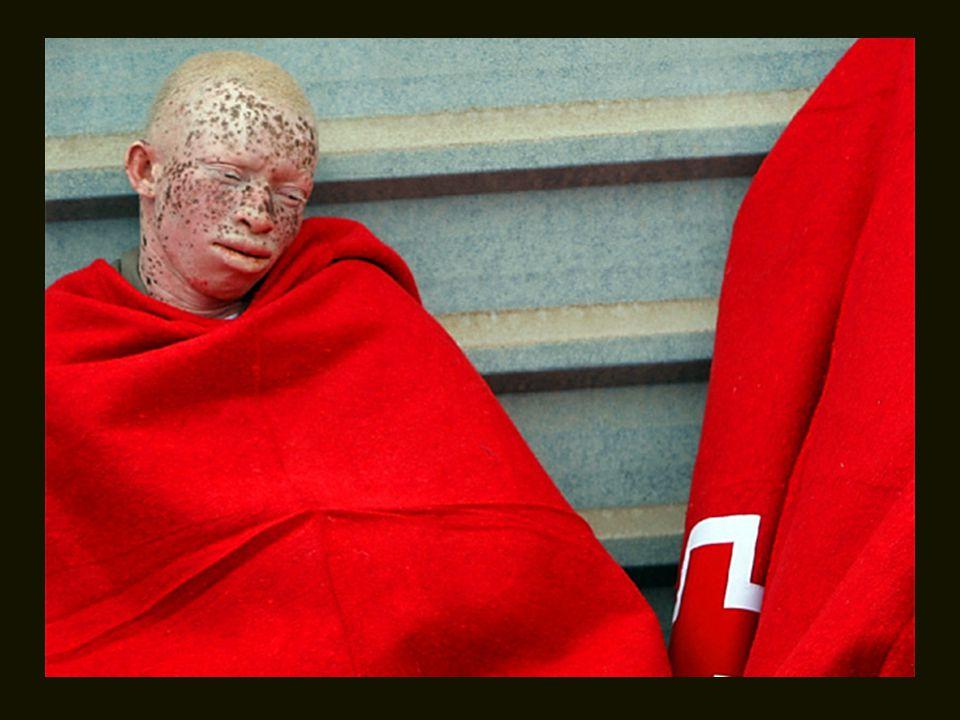 Um negro albino chega de barco, em Tenerife, pedindo asilo para escapar dos bruxos