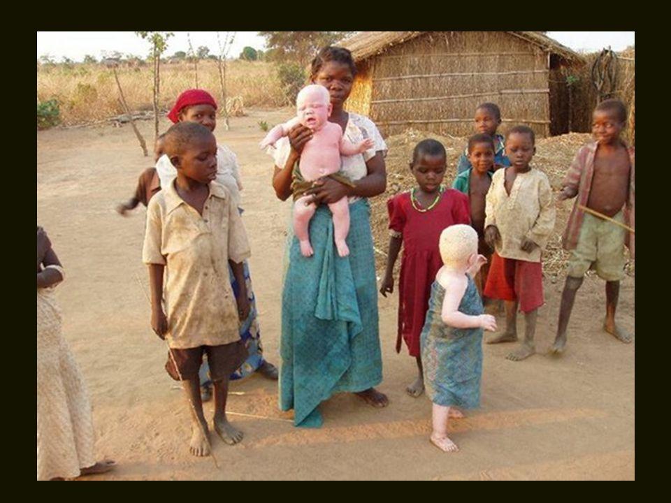 Existem mais albinos na África do que em qualquer outro lugar do mundo.