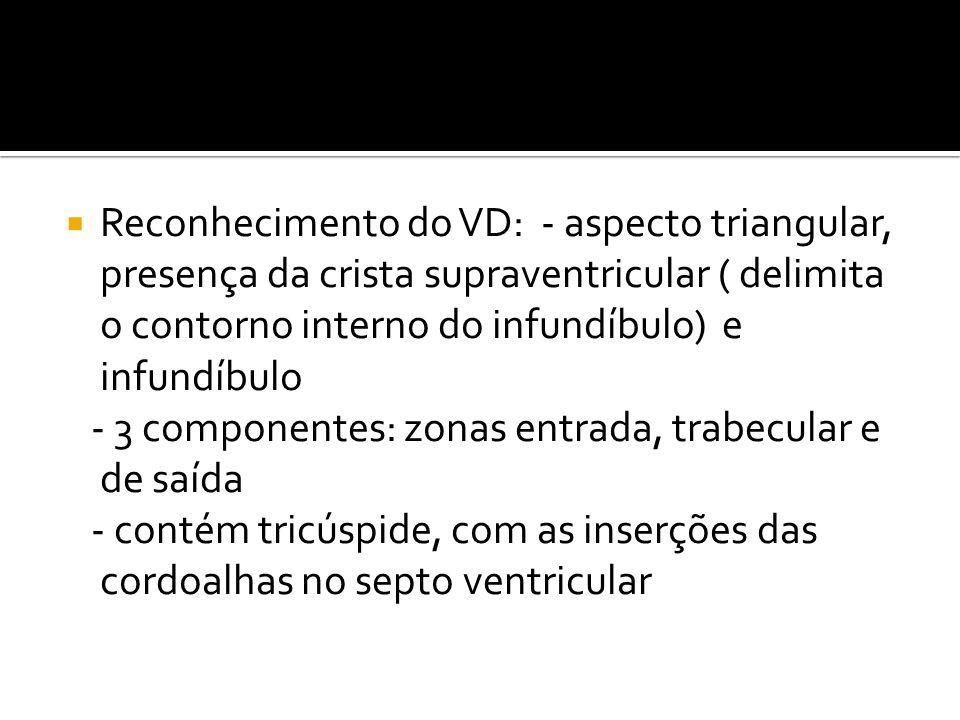  Reconhecimento do VD: - aspecto triangular, presença da crista supraventricular ( delimita o contorno interno do infundíbulo) e infundíbulo - 3 comp